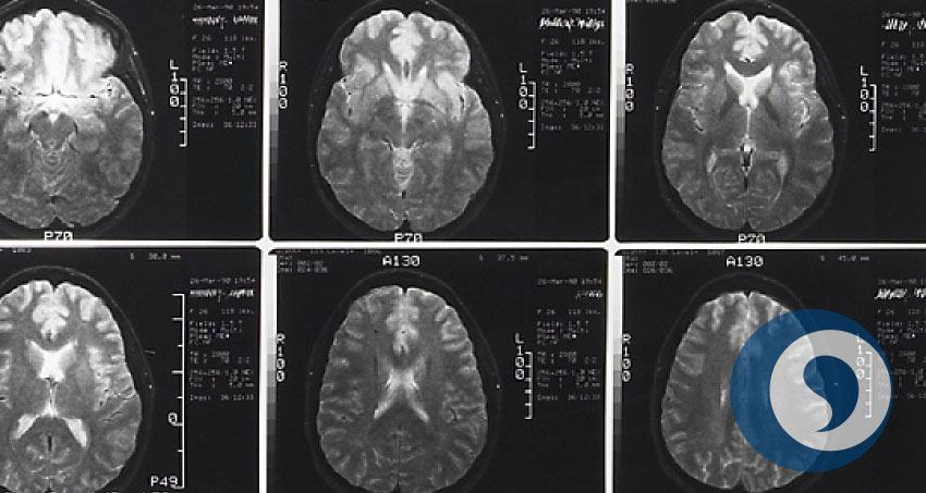 Gehirn-Forschung - Frühförderung bei Babys